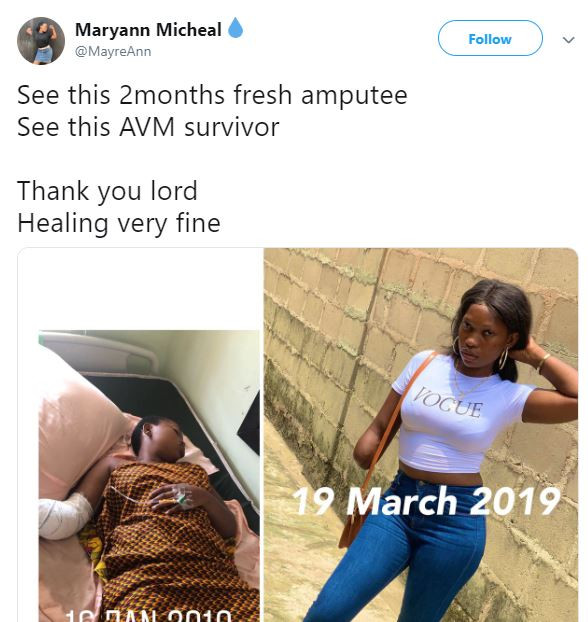 Nigerian Lady Shares Lovely Recovery Photo After Her Arm Got Amputated Two Months Ago