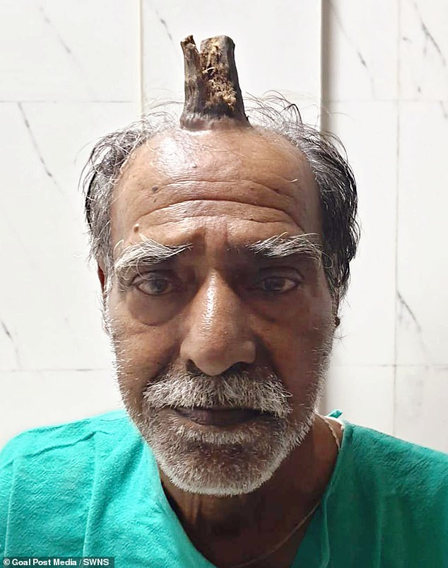 Man Grows Four-inch Horn After Head Injury