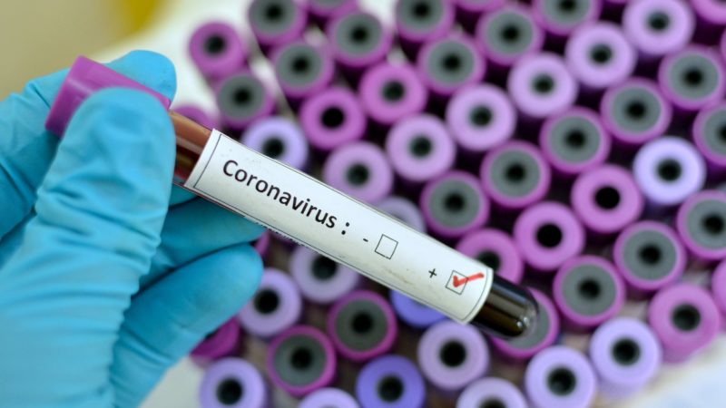 New Way Coronavirus Can Spread Without You Knowing - WHO