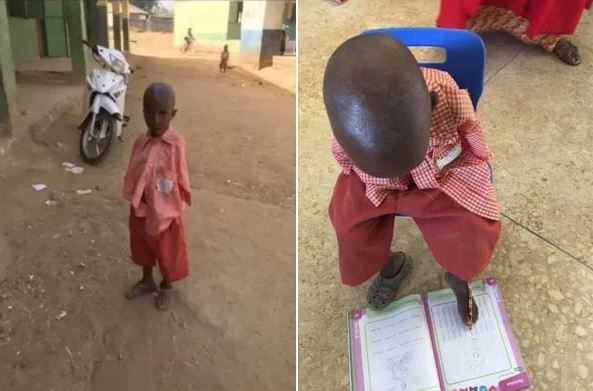 Photos Of A 4-Year Old Boy Born Armless And Writes With His Toes
