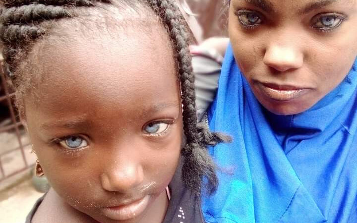 Nigerian Man Rejects His Daughter Because She Has Blue Eyes